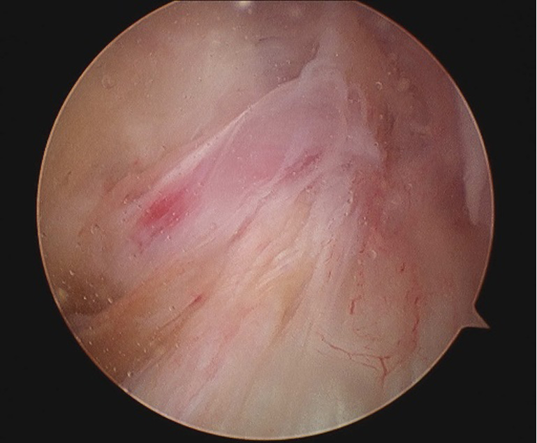 Anterior cruciate ligament ganglion causing flexion restriction: a
