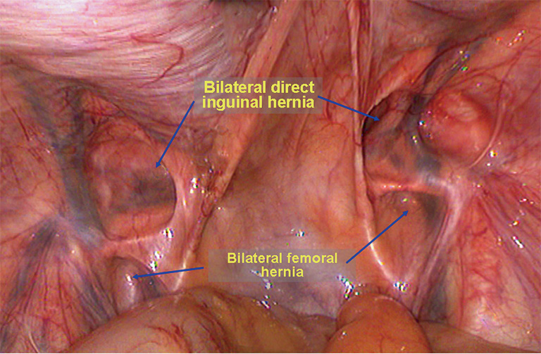 Laparoscopic repair of femoral hernia - Yang - Annals of
