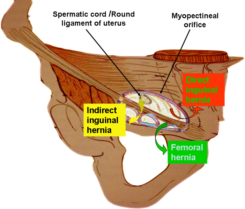 Anatomy Essentials For Laparoscopic Inguinal Hernia Repair Yang