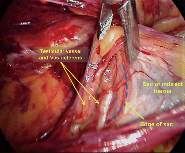 Laparoscopic repair of inguinal hernia in adults - Yang