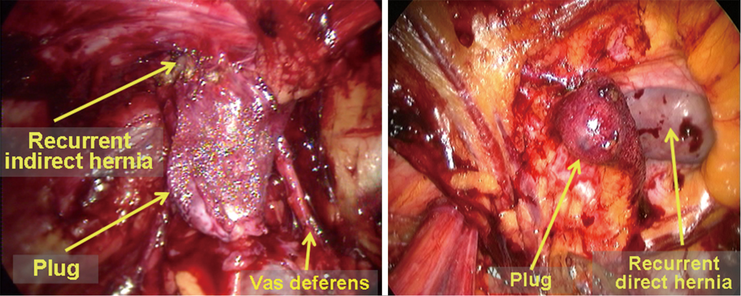 Laparoscopic repair of inguinal hernia in adults - Yang - Annals of ...
