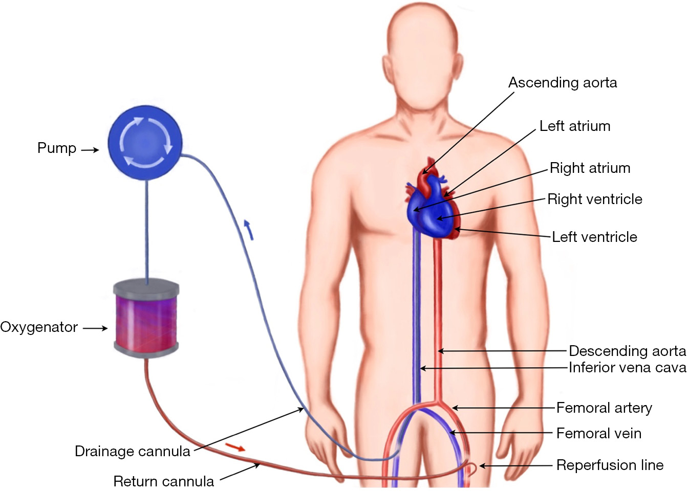 Cannulation techniques for extracorporeal life support - Pavlushkov ...