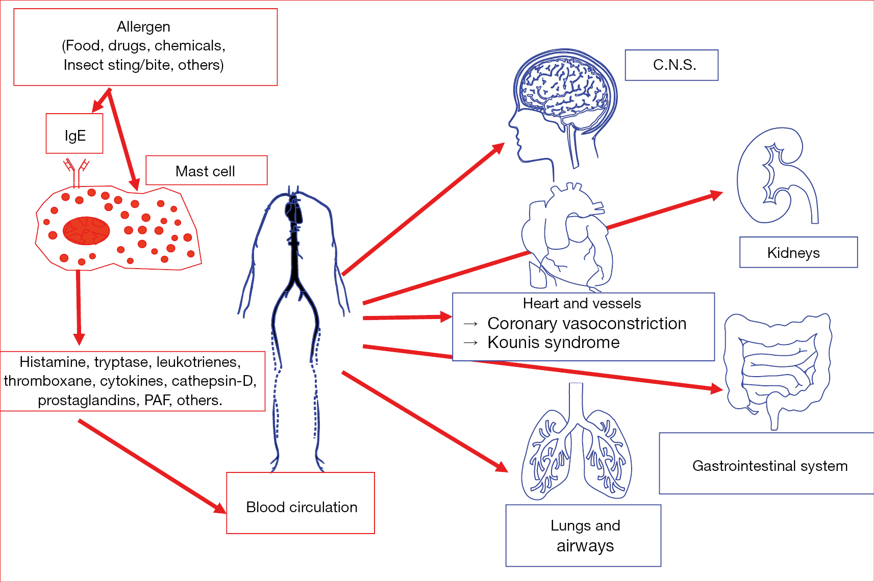 Anaphylactic cardiovascular collapse and Kounis syndrome: systemic