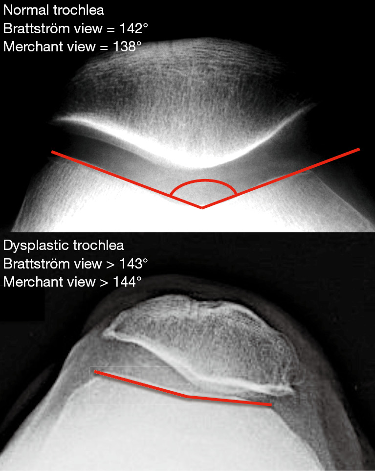 Evolution Of Trochlear Compartment Geometry In Total Knee